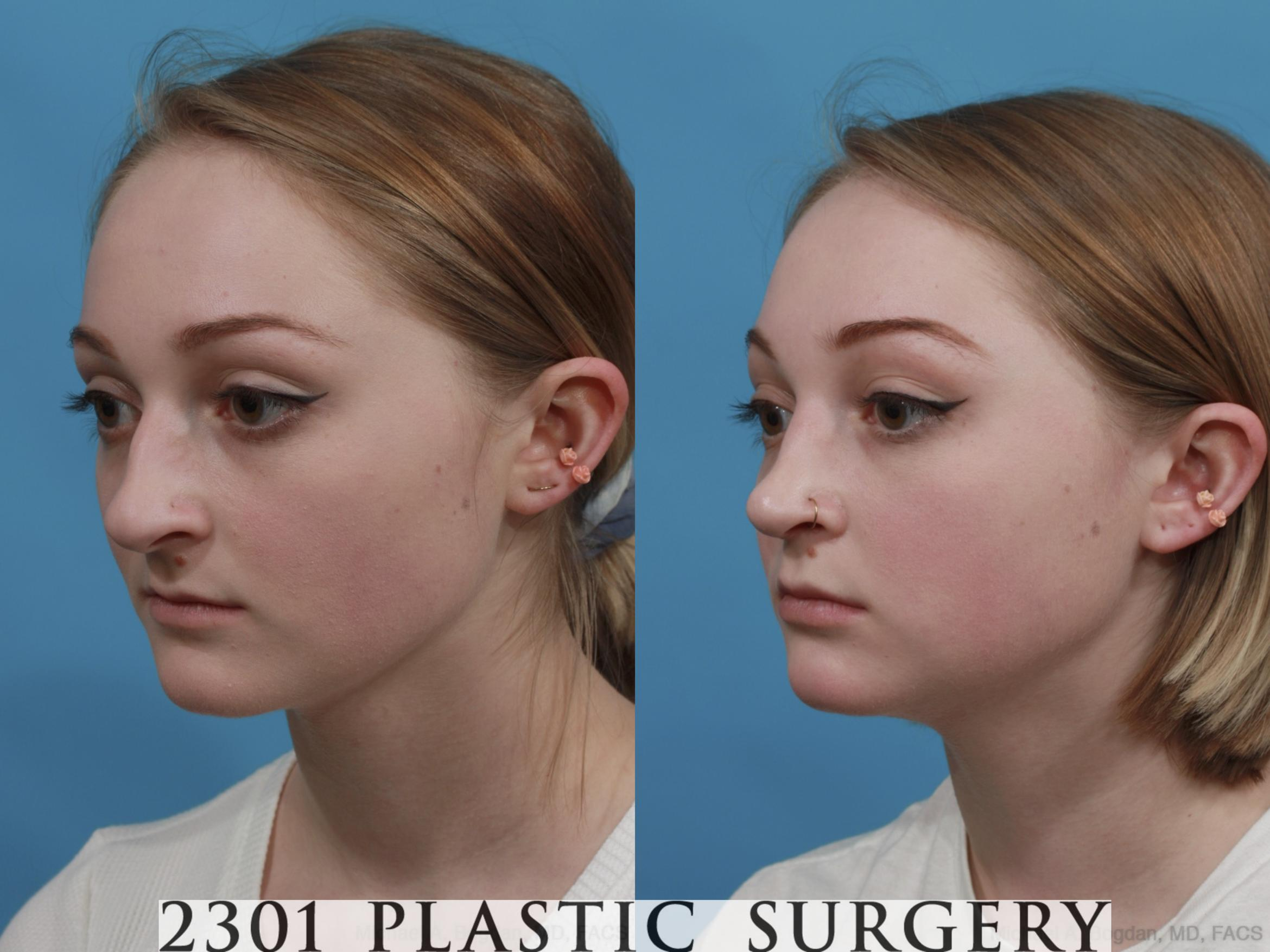 Rhinoplasty Case 571 Before & After View #3 | Fort Worth & Frisco, Texas | Michael A. Bogdan, MD, FACS