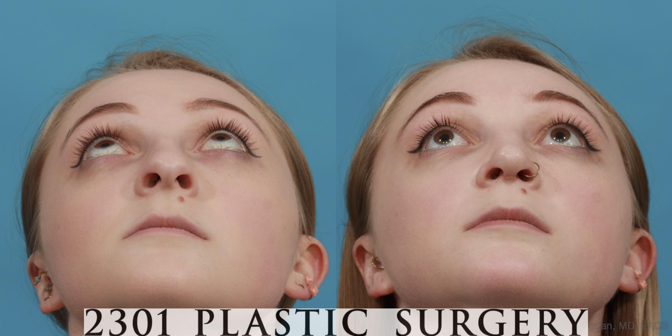 Rhinoplasty Case 571 Before & After View #4 | Fort Worth & Frisco, Texas | Michael A. Bogdan, MD, FACS