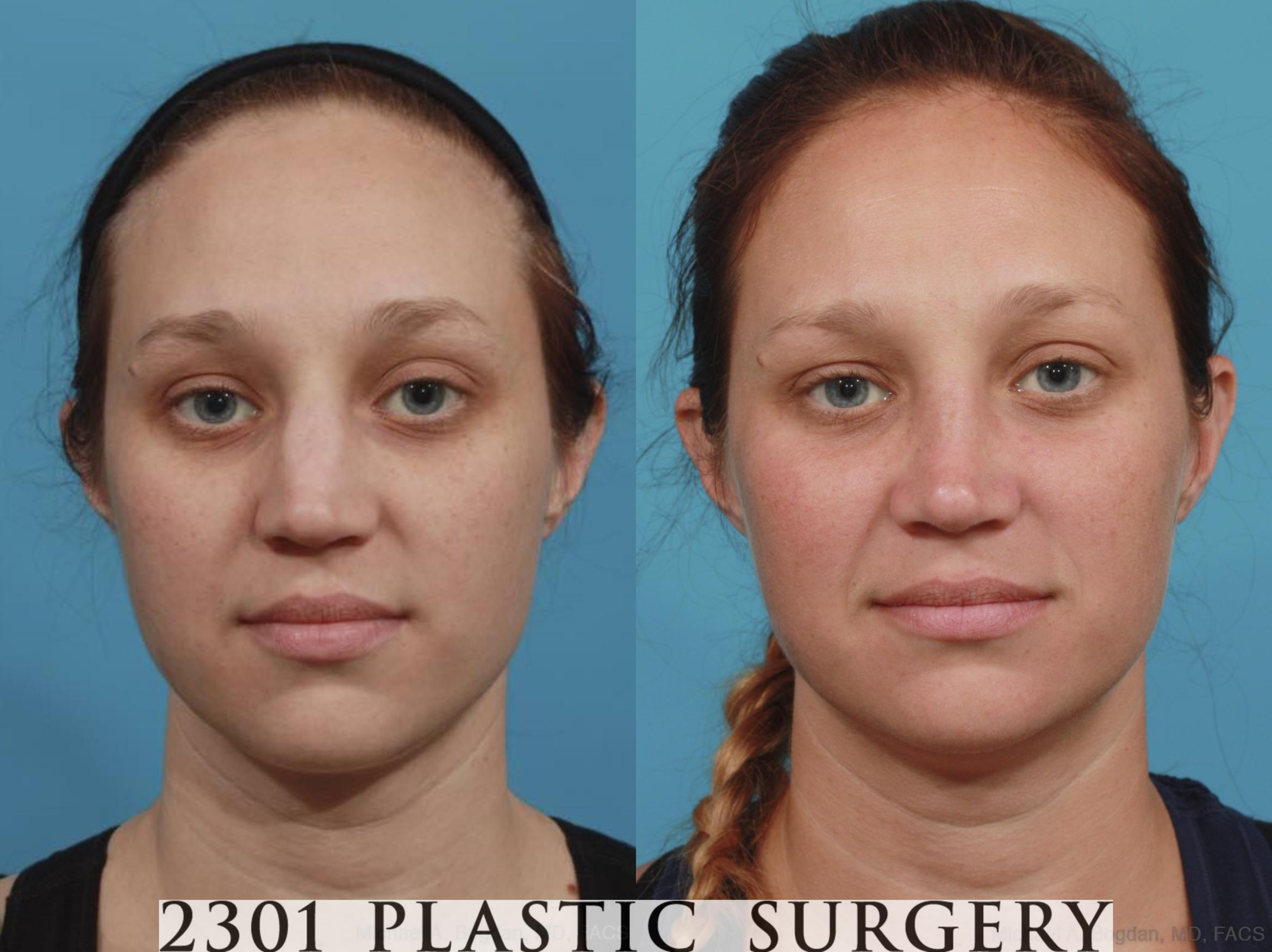 Rhinoplasty Case 585 Before & After View #1 | Fort Worth & Frisco, Texas | Michael A. Bogdan, MD, FACS