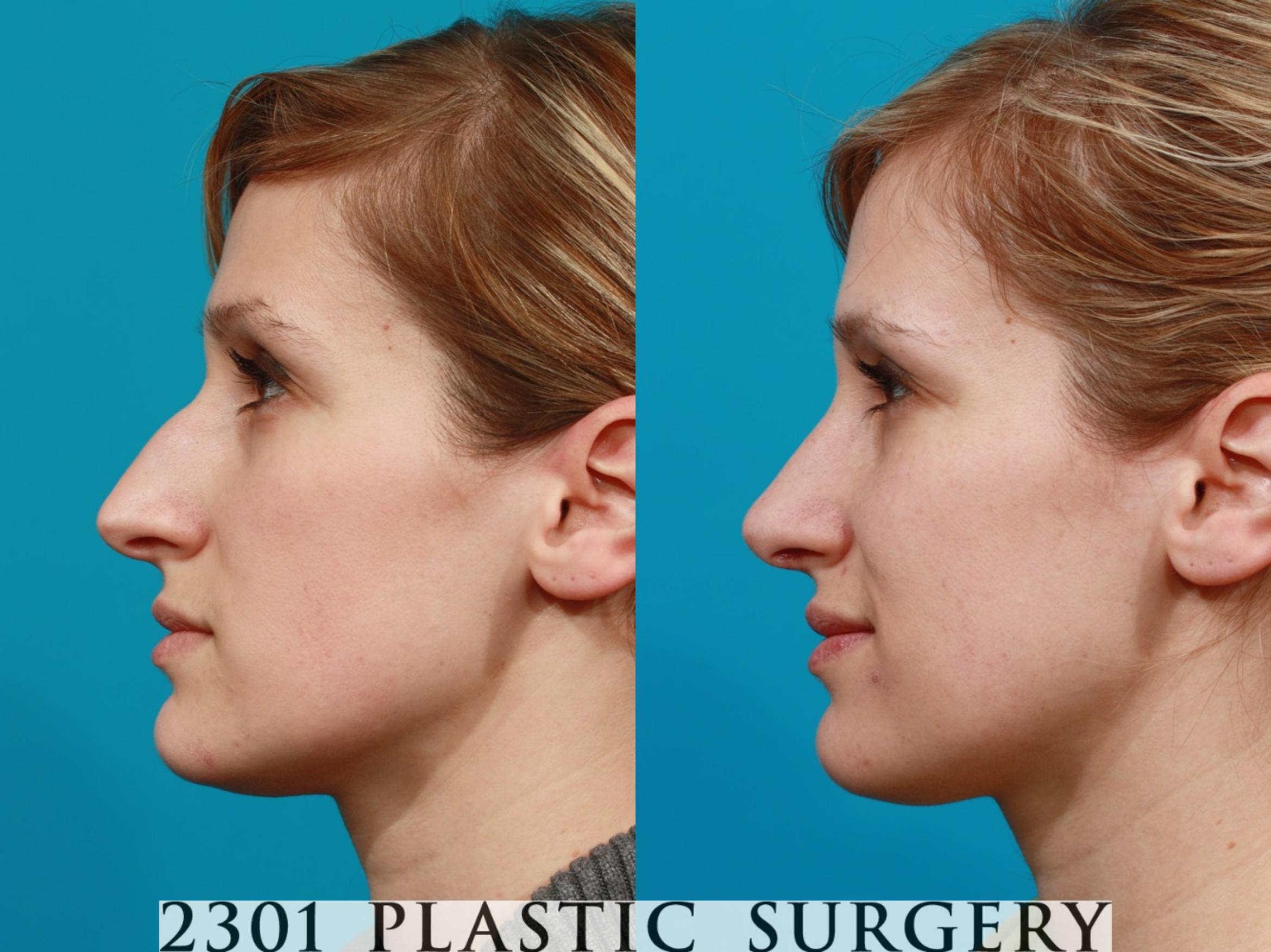 Rhinoplasty Case 94 Before & After View #2 | Fort Worth & Frisco, Texas | Michael A. Bogdan, MD, FACS