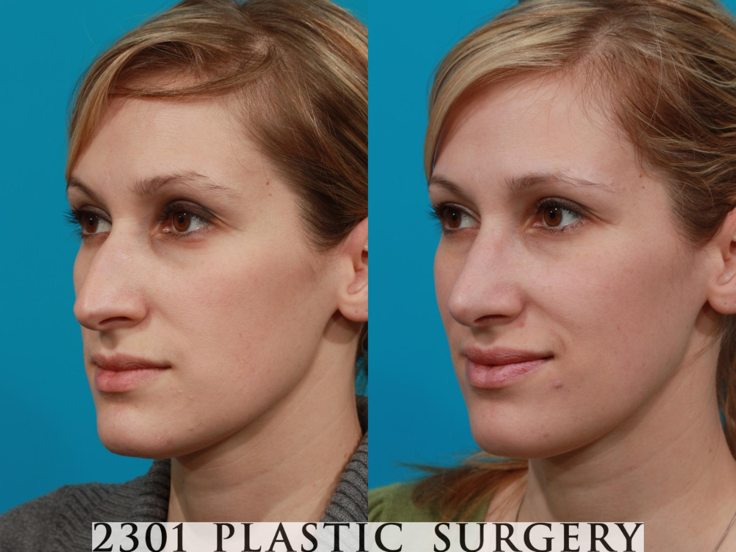 Rhinoplasty Case 94 Before & After View #3 | Fort Worth & Frisco, Texas | Michael A. Bogdan, MD, FACS