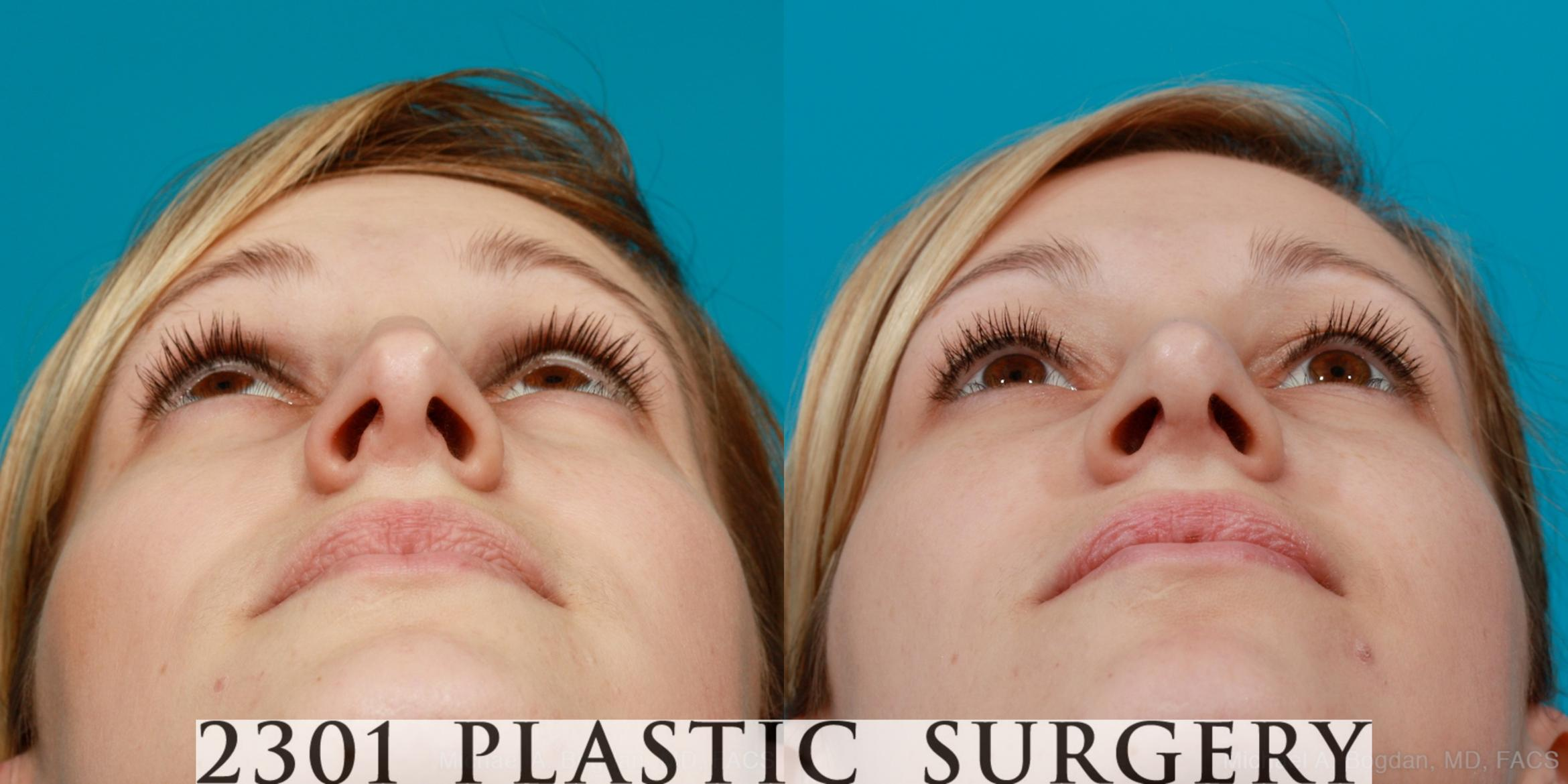 Rhinoplasty Case 94 Before & After View #4 | Fort Worth & Frisco, Texas | Michael A. Bogdan, MD, FACS